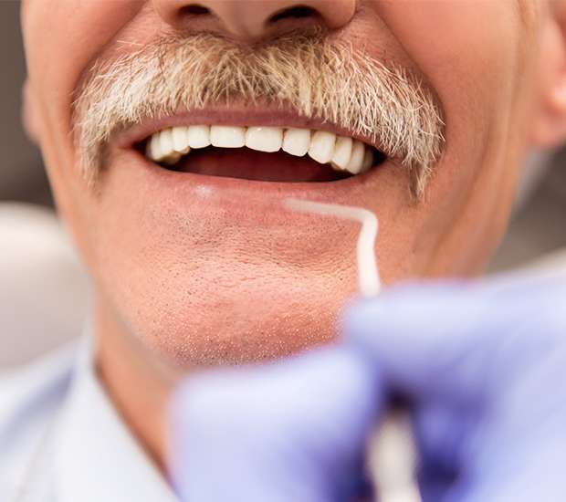 Benicia Adjusting to New Dentures
