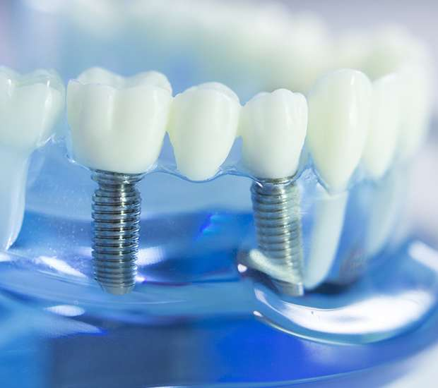 Benicia Dental Implants