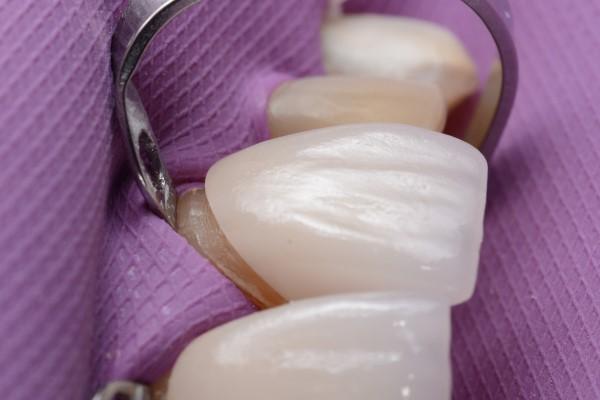 How Veneers Are Used In Cosmetic Dentistry