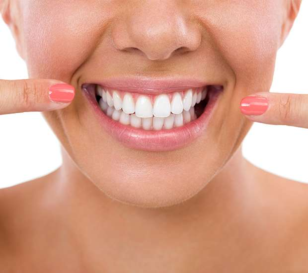 Benicia What Is Gum Contouring & Reshaping