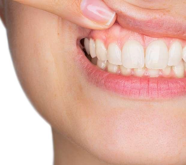 Benicia Gum Disease