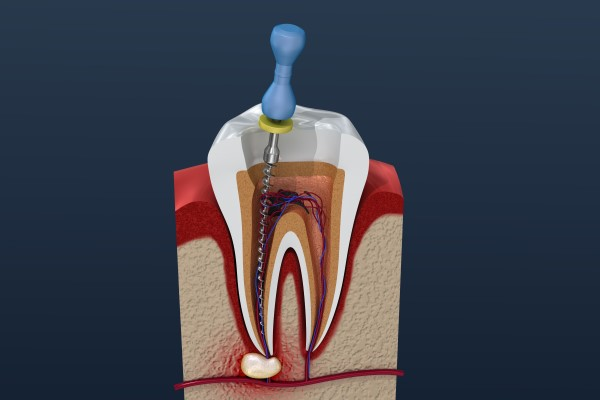 Root Canal: FAQs