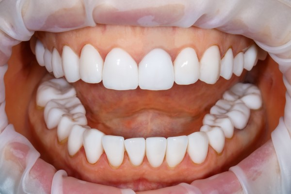 Tips To Help Choose The Right Smile Makeover Treatment