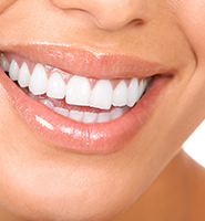 Teeth Whitening Services Benicia, CA