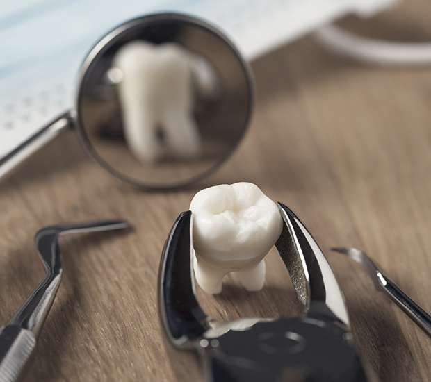 Benicia When Is a Tooth Extraction Necessary